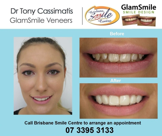 Dental before & after